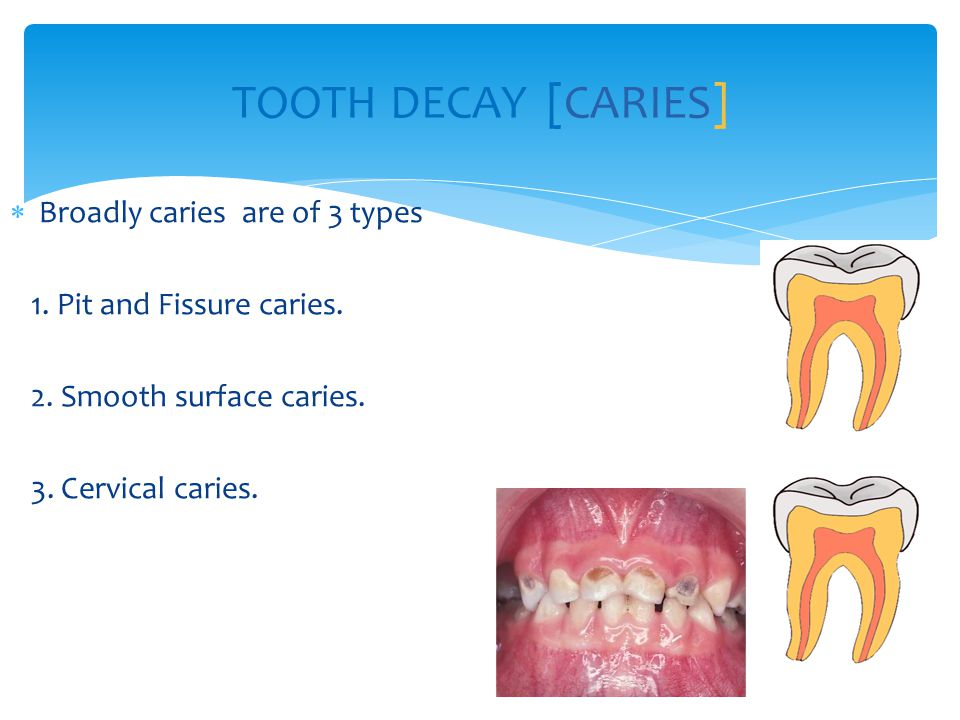 TOOTH DECAY [CARIES] Broadly caries are of 3 types